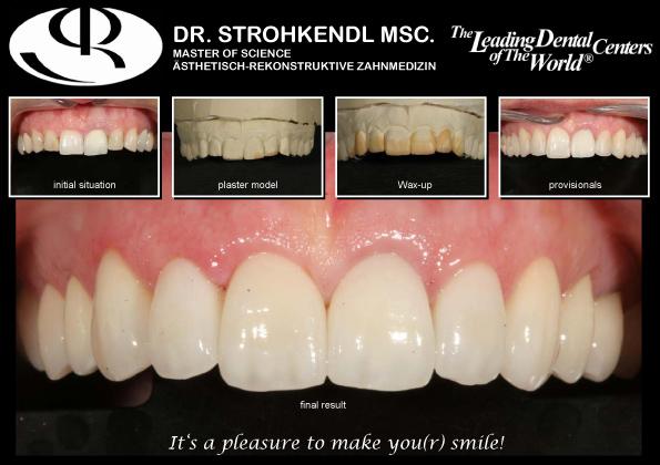 stuttgart dentistry Dr. Strohkendl Vaihingen English speaking